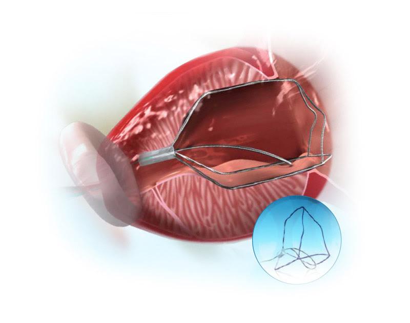 stent prostatico ingrossato